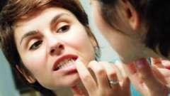 Чим потрібно полоскати рот при запаленні ясен