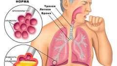 Головні правила ефективного лікування бронхіального кашлю