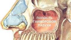 Як лікувати гайморит без проколу носових пазух