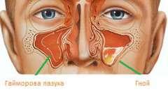Ознаки, симптоми і лікування гаймориту