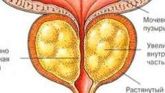 Простатит - симптоми і лікування