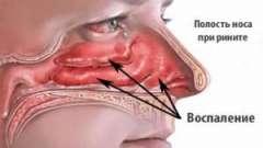 Симптоми і лікування запалення слизової оболонки носа