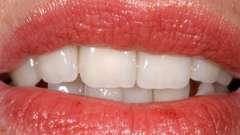 Скільки коштує імплантація одного зуба?