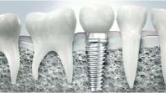 Зубні імплантанти і ціни на них